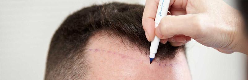 Autotrapianto di capelli: tempi rapidi e risultati migliori