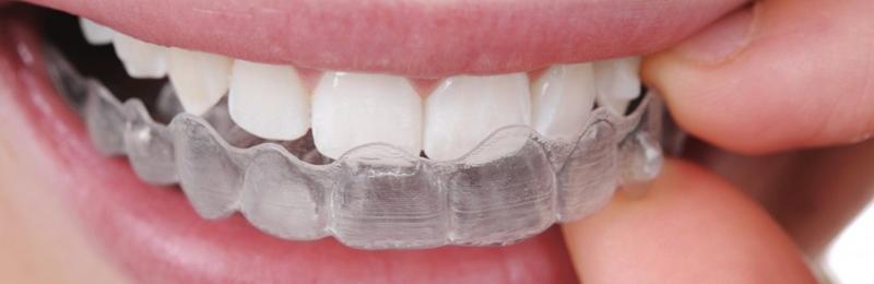 Invisalign: l'apparecchio dentale trasparente