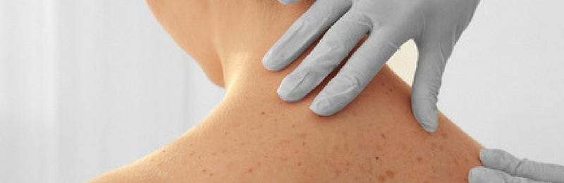 Melanoma: diagnosi precoce con la videodermatoscopia